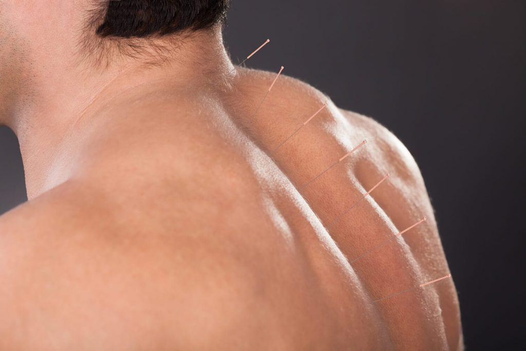 Acupuncture for back pain in Albuquerque
