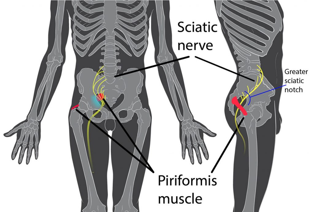 Sciatica pain management diagram and where it starts to hurt